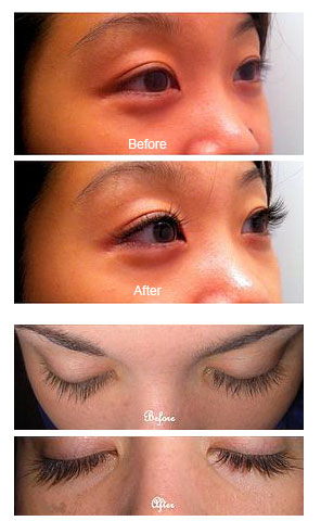 eyelash extensions header